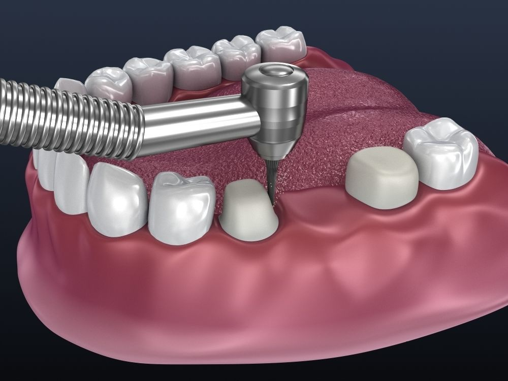 Tooth supported fixed bridge and single crown