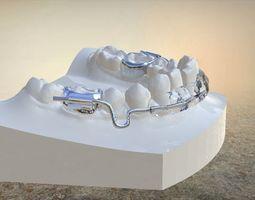 Digital Lip Bumper Appliance 3D printable model