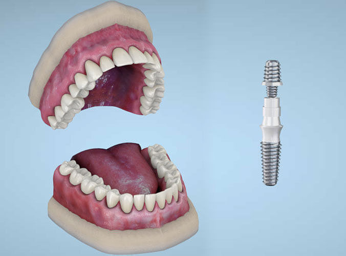 dental implants 3d model fbx 1