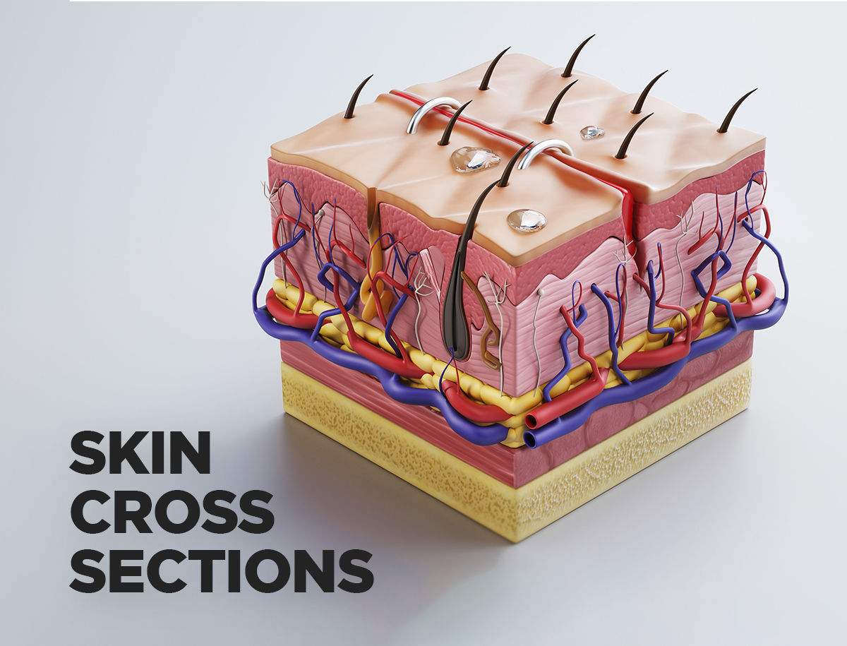 Skin cross sections-damaged skin-cut skin- with 4K textures