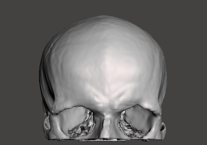 Human skull - male