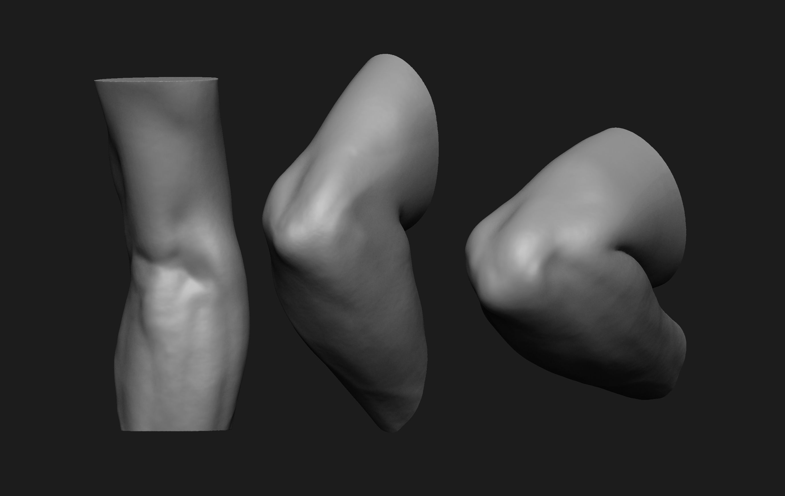 Elbow Set Anatomy Reference