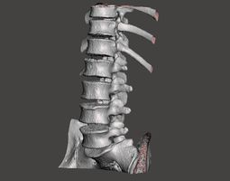 Male spine T10-L5 3D model ct