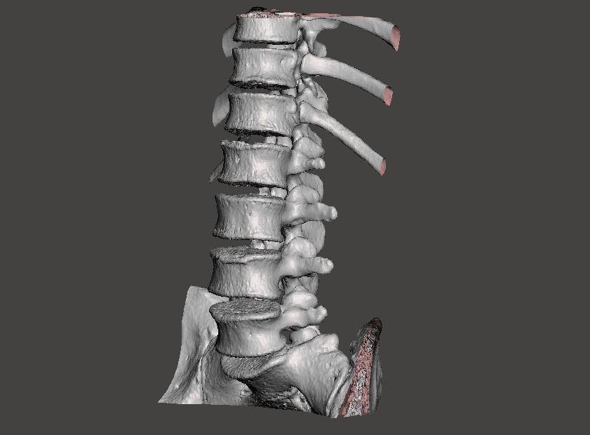 Human spine T10-L5 - male
