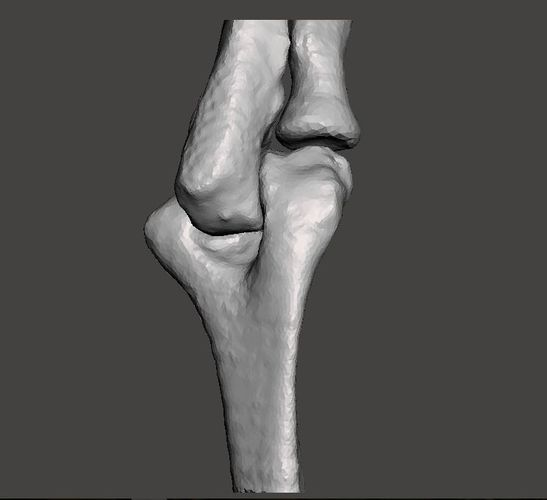 right elbow - female - age 37 3d model obj mtl stl 1