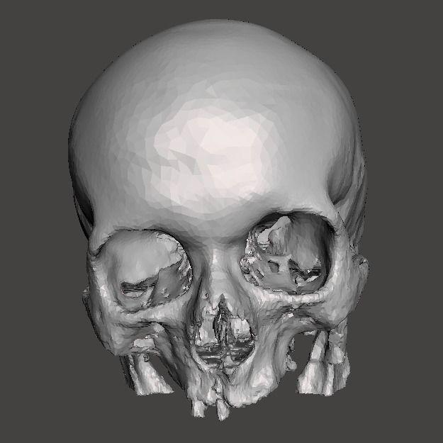 Skull female - age 80