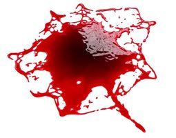 Blood Stain 2 3D anatomy